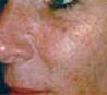 ipl-przed-twarz-1